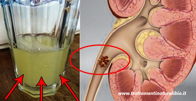 La bevanda che elimina i calcoli renali e depura i reni