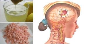 Sale e limone: come preparare il rimedio che blocca il mal di testa in pochissimi minuti