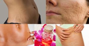 Acne, cicatrici e smagliature: come eliminarli velocemente con l'Olio di Rosa Mosqueta