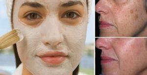 Bicarbonato e aceto: la maschera