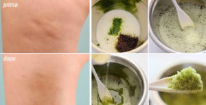 Come eliminare la cellulite in pochi giorni con questo rimedio naturale. Ecco la ricetta dell'infuso
