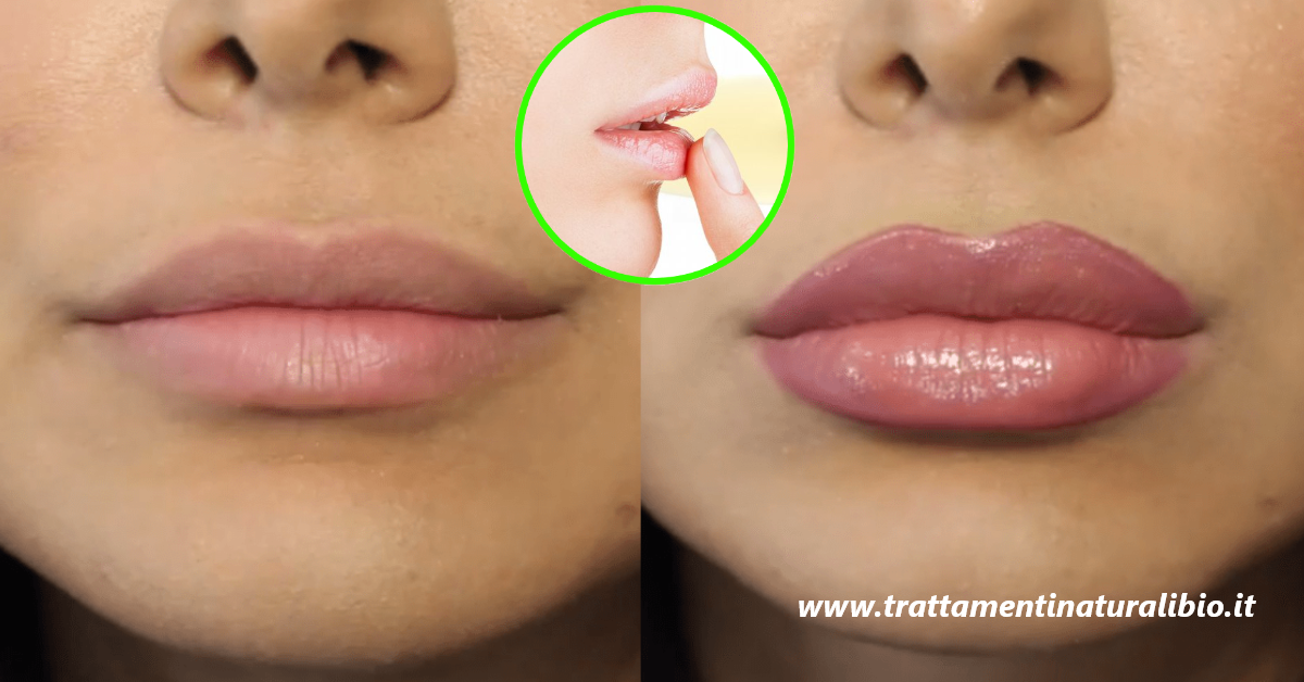 Labbra carnose e sensuali all'istante grazie a questi 6 metodi tutti naturali
