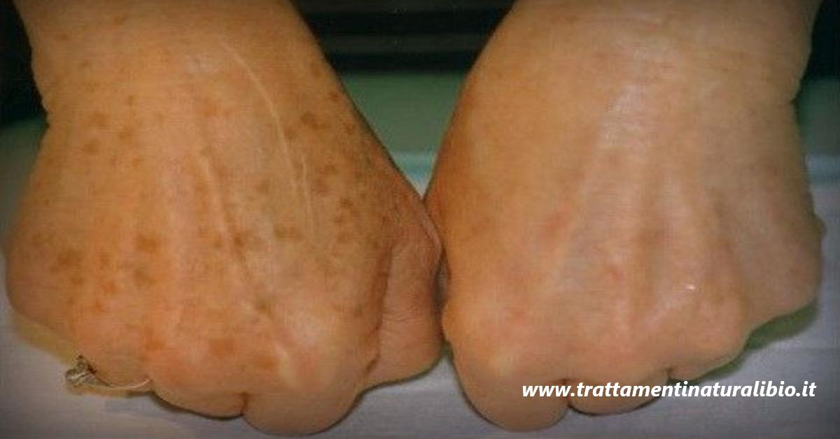 Macchie della pelle e rughe dalle mani: ecco come eliminarle in pochissimo tempo