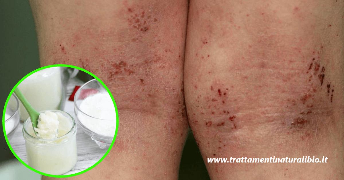 Alleviare dermatite e pelle irritata o secca con questa crema fai da te
