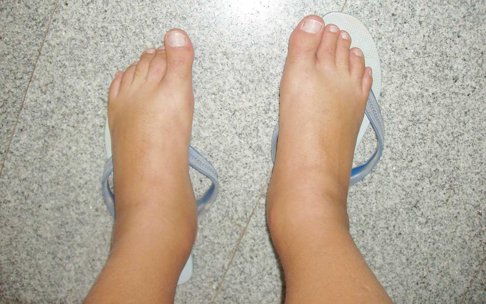 Caviglie gonfie: come sgonfiarle in pochi minuti e in modo naturale