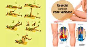 Elimina le vene varicose in pochi giorni grazie a questi 5 esercizi
