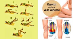 Elimina le vene varicose