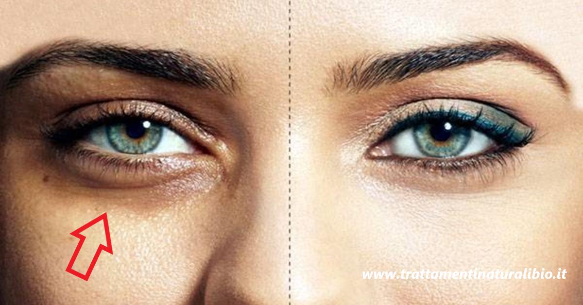 Come eliminare le occhiaie e perché si formano