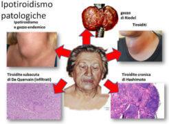 Ipotiroidismo: cos'è, cause, sintomi e prevenzione