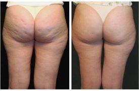 Rimedio Definitivo per eliminare la Cellulite già dalla prima settimana