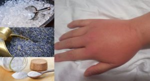 Mani gonfie al mattino: Rimedi naturali per sgonfiarle in pochi minuti