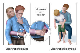 Primo Soccorso in caso di soffocamento: Manovra di Heimlich