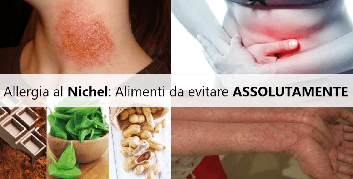 Dieta per allergici al Nichel: Alimenti da evitare assolutamente