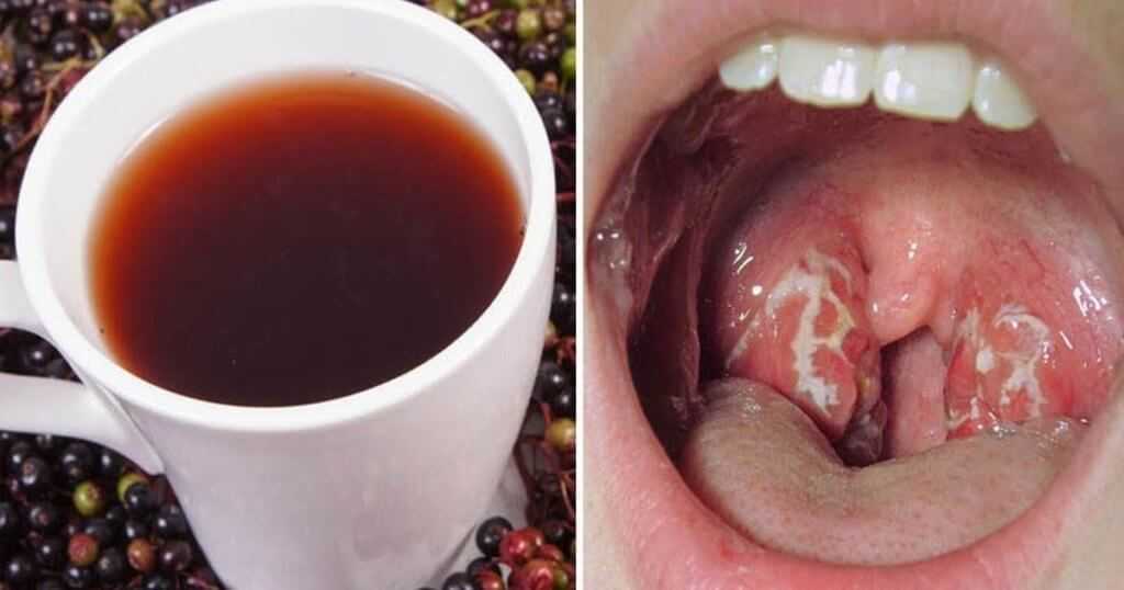 Placche in gola: Il rimedio naturale che aiuta a sbarazzarsene in poche ore