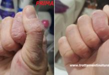 Mani screpolate e spaccate dal freddo: rimedi per eliminare il dolore e velocizzare la guarigione