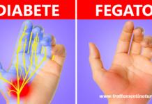 16 problemi di salute che puoi scoprire guardando le tue mani