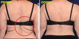 6 esercizi mirati per eliminare i rotolini di grasso sulla schiena in 2 settimane