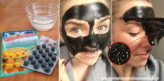 Black mask fai da te: la maschera che elimina punti neri e impurità in pochi minuti