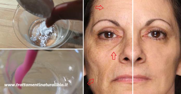 Come preparare un potente gel antirughe a base di acido ialuronico per un effetto lifting immediato