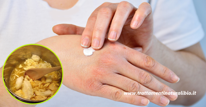 Crema mani fai da te per proteggerle dal freddo e ripararle velocemente