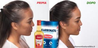 Lo shampoo che accelera la crescita dei capelli a base di bicarbonato e aceto di mele