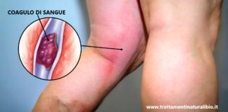 10 sintomi di trombosi che non devi assolutamente ignorare