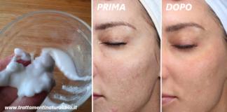 Microdermoabrasione fai da te per eliminare acne e rughe in modo efficace