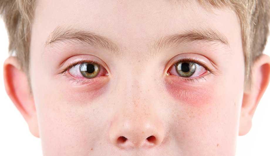 Come alleviare i sintomi dell'allergia al polline nei bambini
